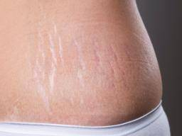 Stretch Marks On Thighs Appearance Causes And Treatments