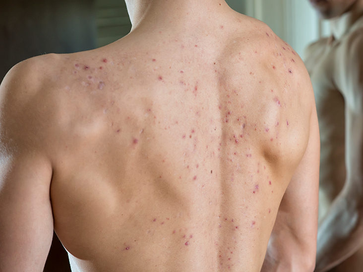 Cystic Back Acne Causes And How To Treat It